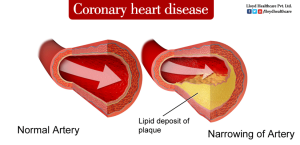 Cornary-heart-disease